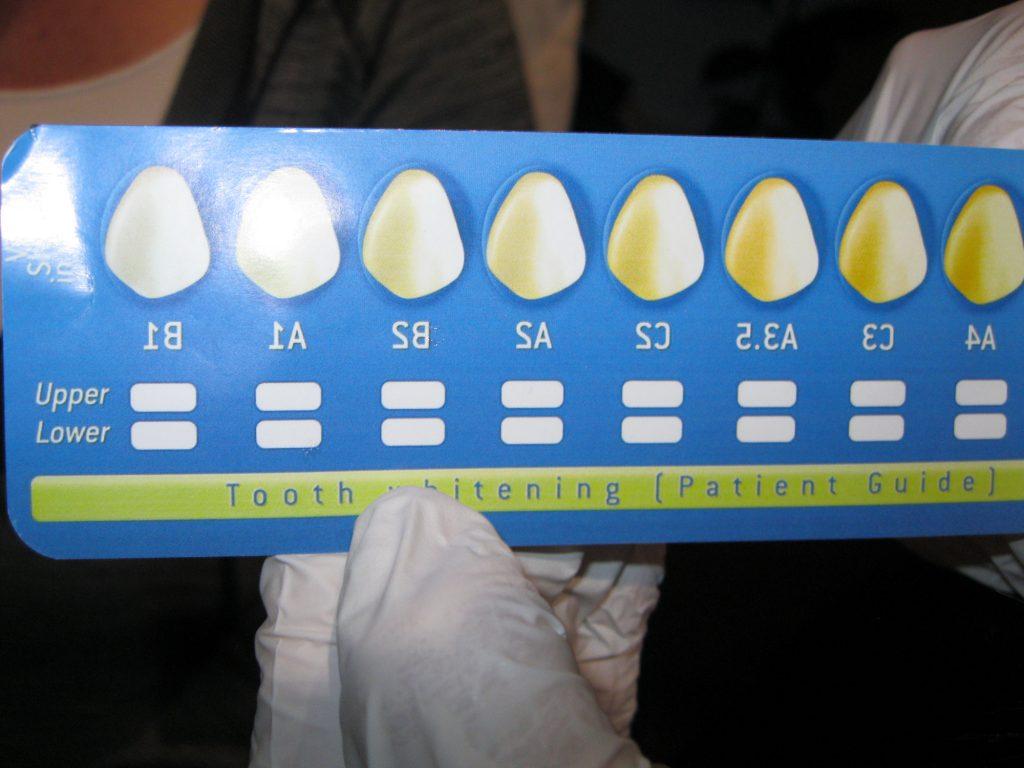 Estaetix Kosmetisches Zahnbleaching Zahnkosmetik Ebstorf 2