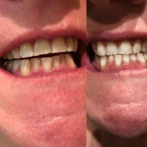 Vorher-Nachher Zahnbleaching Zahnkosmetik Estaetix Ebstorf